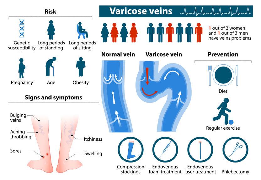 Varicose veins disease infographic